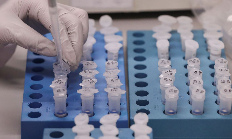 Secretaria de Saúde de Toledo divulga novos números de casos suspeitos do novo Coronavírus