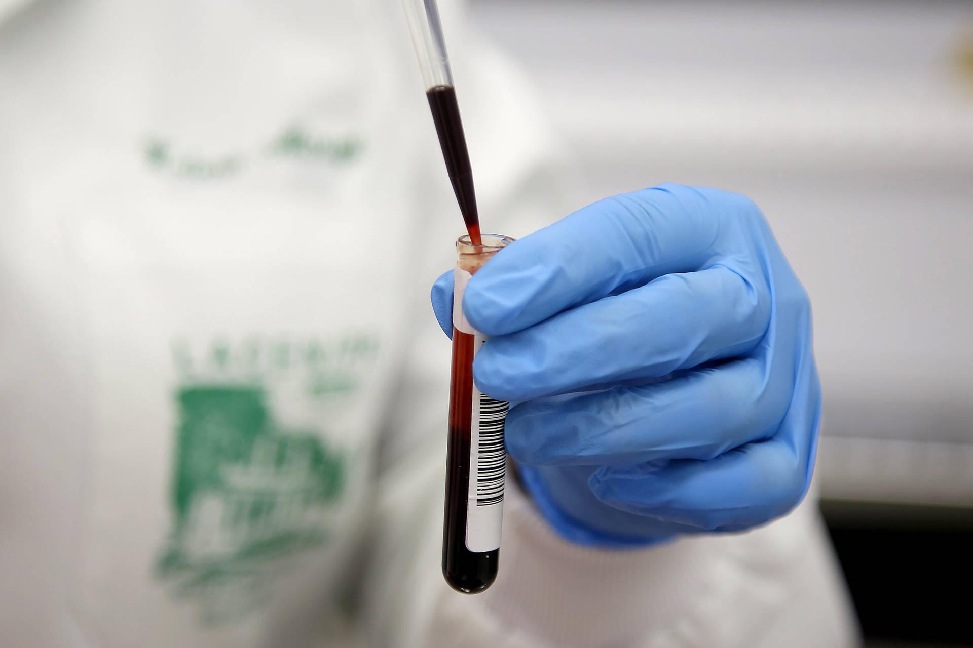 Prefeitura de Maringá confirma duas mortes pelo novo coronavírus
